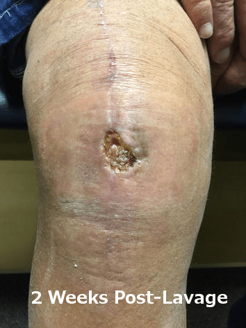 Picture of wound 2 weeks after treatment with AlphaPATCH amniotic membrane