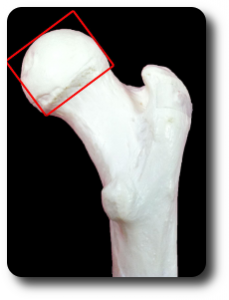 Femoral Head Rounded